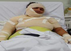 Mulher tem 70% do corpo queimado com óleo fervente jogado pelo marido enquanto ela dormia, em Fortaleza