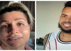 Dani Souza assusta Dentinho ao mostrar resultado de 'novo botox'