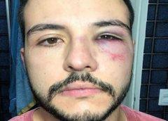 Apresentador da Record TV é agredido em tentativa de assalto